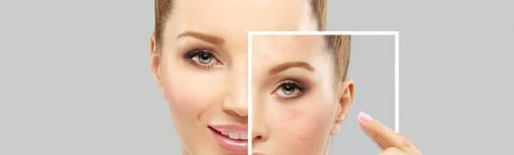 A Basic Guide on Medications for Acne